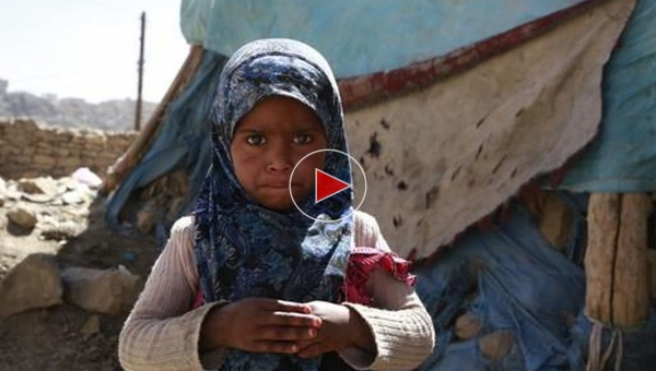 Research Watch - Yemen girl